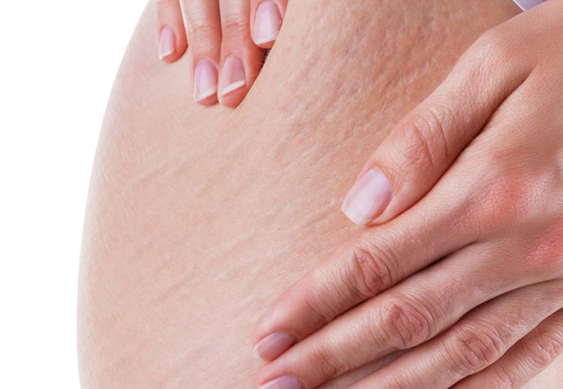 Combate la celulitis de las piernas y glúteos con estos 4 ejercicios | El Imparcial de Oaxaca