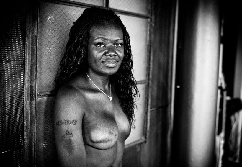 Las cicatrices del cáncer de mama