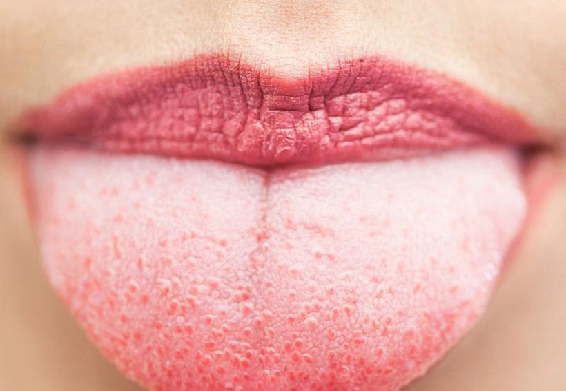Signos de que tu cuerpo tiene demasiadas toxinas | El Imparcial de Oaxaca