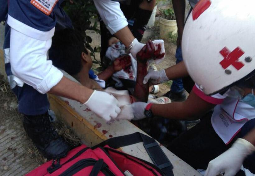 En Oaxaca, atacan a joven a machetazos por ahuyentar a un perro a pedradas | El Imparcial de Oaxaca