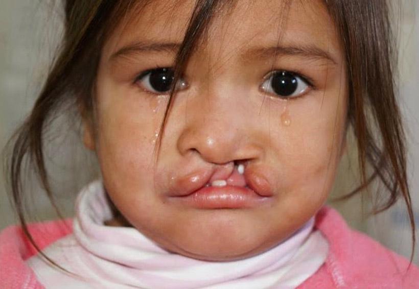 Realizarán cirugías de labio leporino y paladar hendido en Oaxaca | El Imparcial de Oaxaca