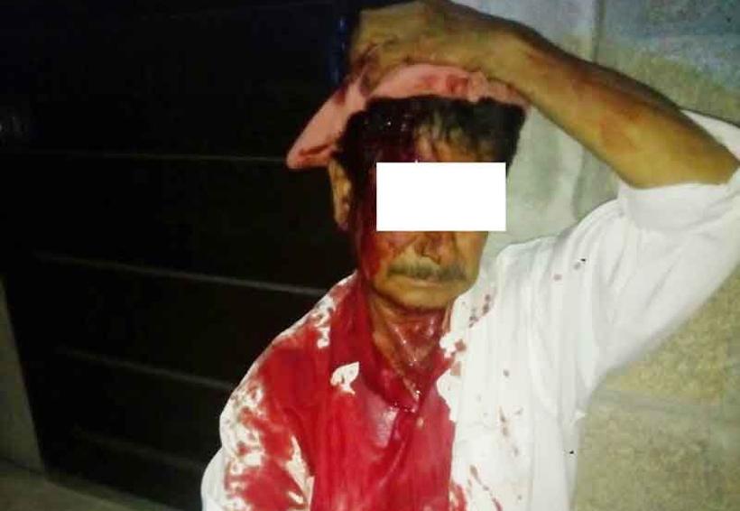 Taxista navajeado por oponerse a un asalto | El Imparcial de Oaxaca