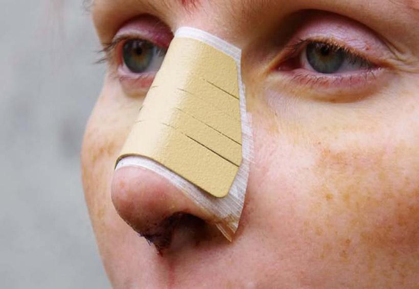 El riesgo de una mala cirugía de nariz | El Imparcial de Oaxaca
