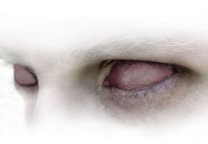 Joven se arranca los ojos en plena alucinación por uso de drogas en Estados Unidos | El Imparcial de Oaxaca