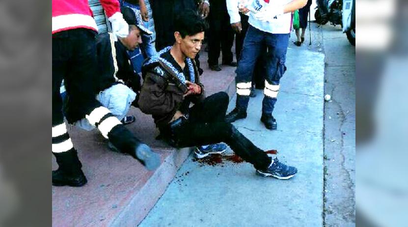 Navajean a joven en la Mixteca; agresores escapan | El Imparcial de Oaxaca