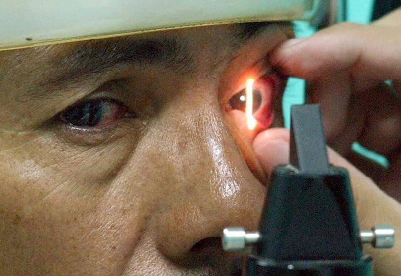 Ceguera por edad es curada con células madre | El Imparcial de Oaxaca