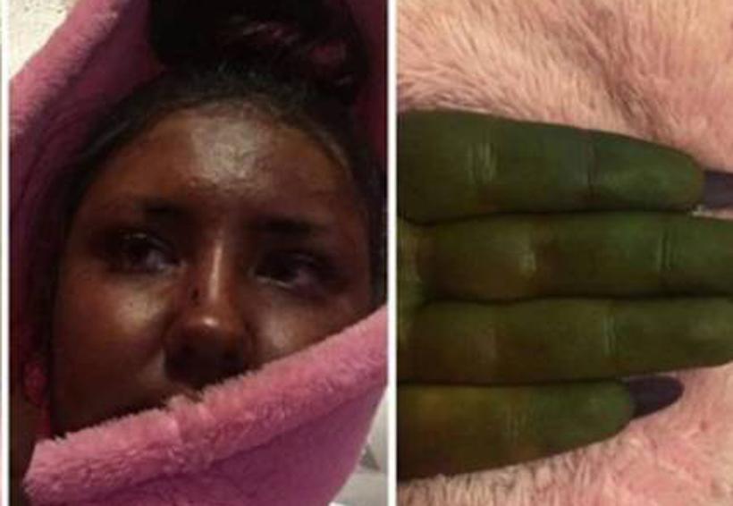 Su piel se pone completamente verde por culpa de un bronceador | El Imparcial de Oaxaca