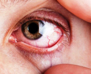 Glaucoma, enfermedad que no presenta síntomas