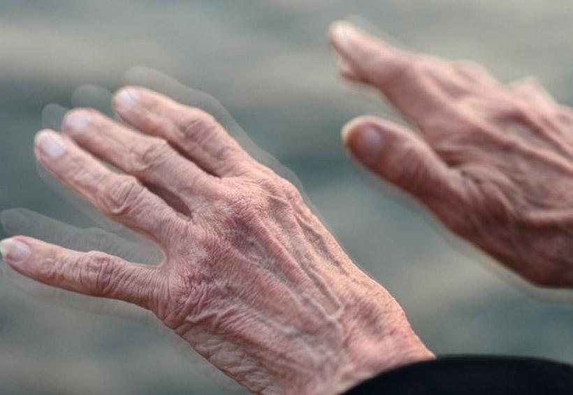Terapia contra el Parkinson es implementada por mexicano | El Imparcial de Oaxaca
