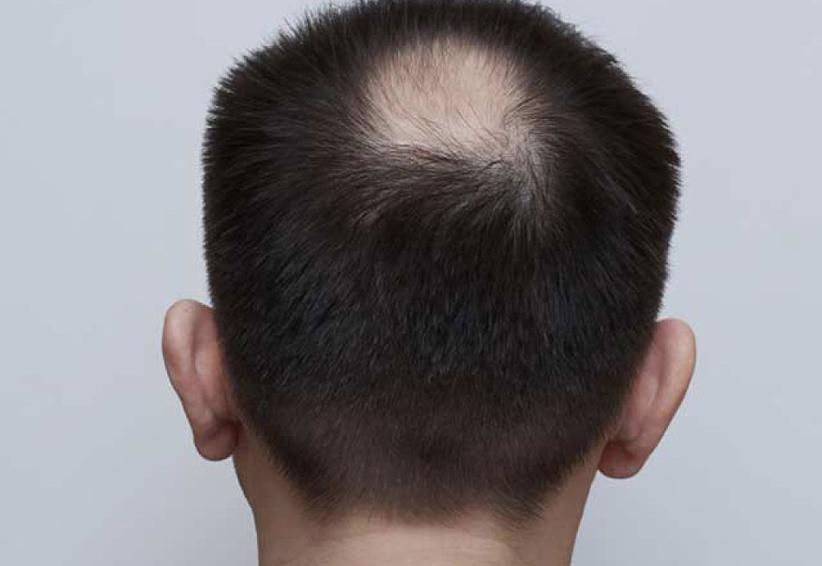 ¿Pierdes cabello? Podría ser alopecia, conoce sus características | El Imparcial de Oaxaca