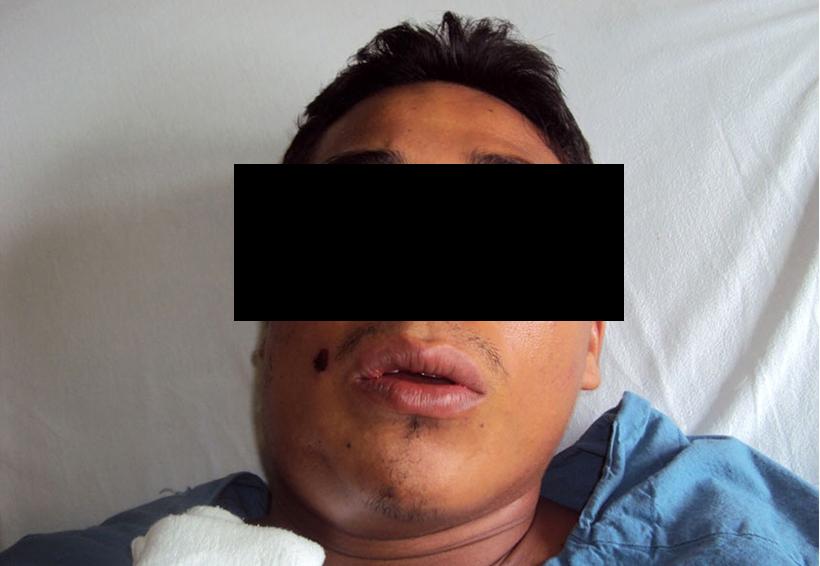 Asesinan al jefe de Los Ocho Mil | El Imparcial de Oaxaca