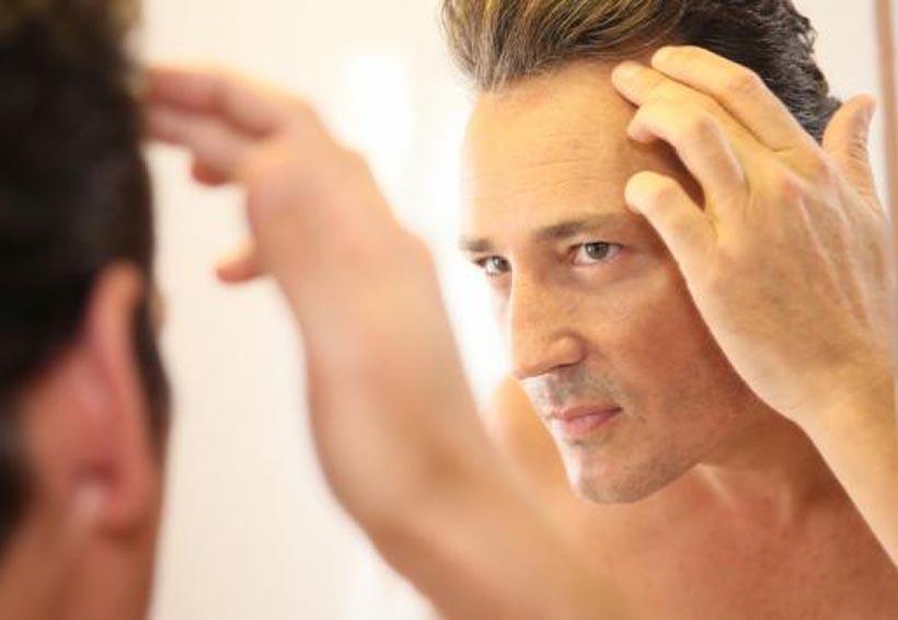Evita la caída del cabello con estos hábitos | El Imparcial de Oaxaca