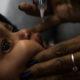 Hay más de 1,200 personas infectadas de sarampión en Brasil