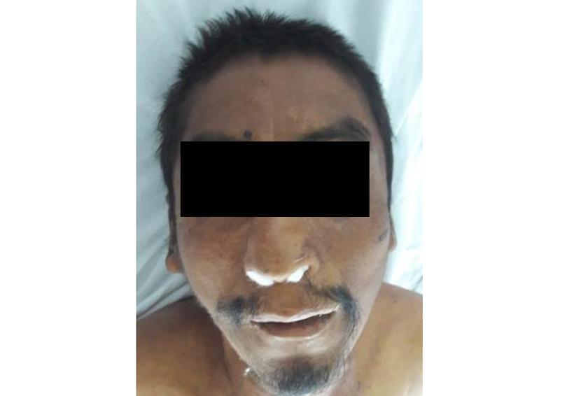 Fallece sin  ser reconocido en Huajuapan