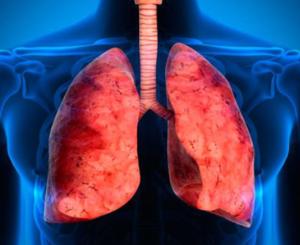 Infección por tuberculosis, la más letal del mundo