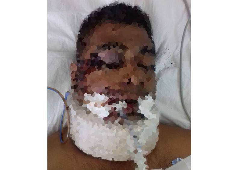 Grave hombre  embestido en  su motocicleta | El Imparcial de Oaxaca