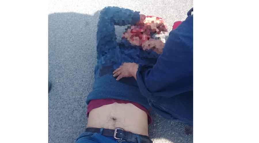Atropellado, víctima colateral de los bloqueos en la capital | El Imparcial de Oaxaca