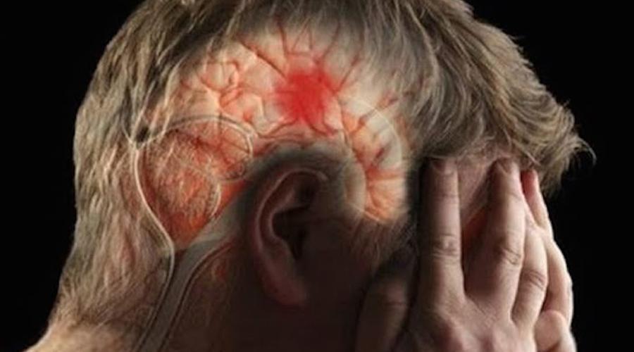 Aumentan derrames cerebrales en jóvenes | El Imparcial de Oaxaca