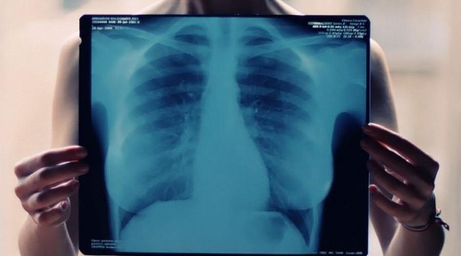¿En qué casos es peligroso hacerse una radiografía? | El Imparcial de Oaxaca