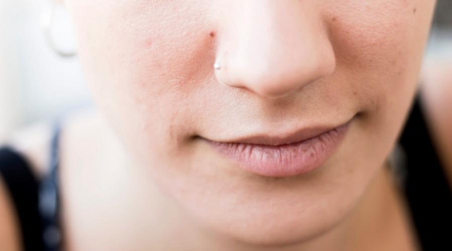 ¿Qué es el cáncer de nariz y cuáles son sus síntomas? | El Imparcial de Oaxaca