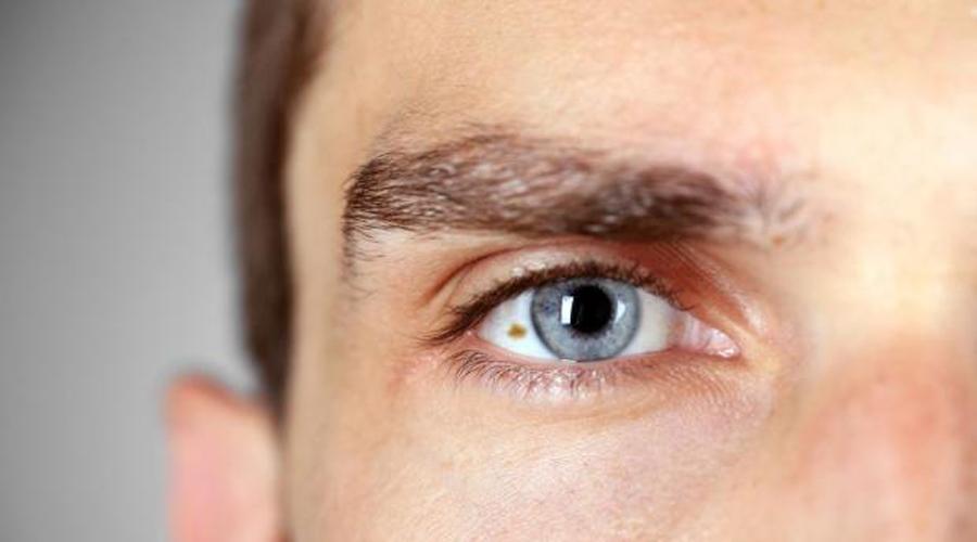 Lunares en los ojos podrían ser señal de cáncer ocular | El Imparcial de Oaxaca