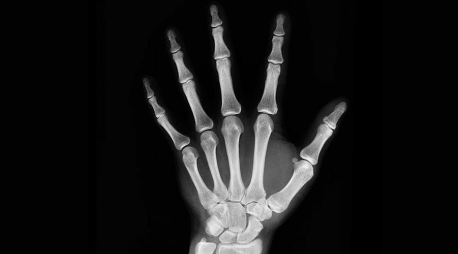 ¿Miedo a padecer osteoporosis? Prevenla con una nueva dieta   El Imparcial de Oaxaca