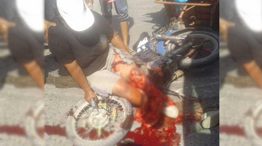 Autobús atropella a mujer y le tritura pierna en Juchitán | El Imparcial de Oaxaca