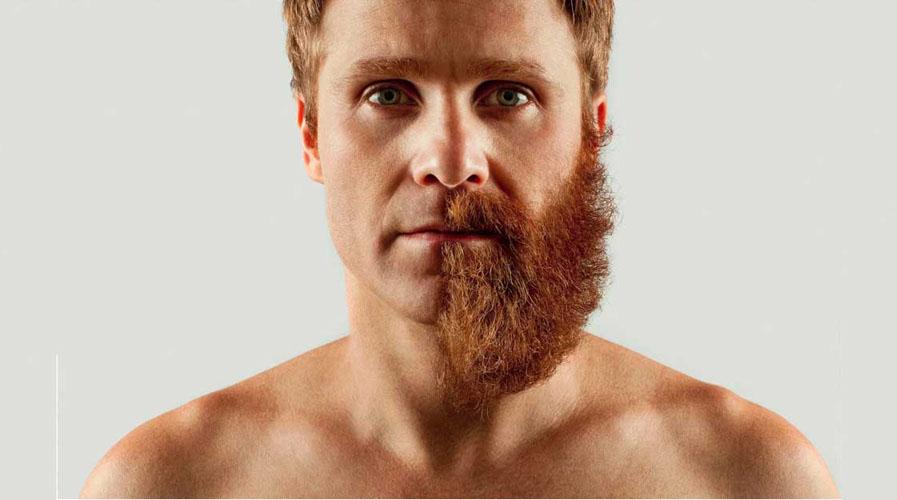¿Por qué a algunos hombres no les puede crecer la barba? | El Imparcial de Oaxaca
