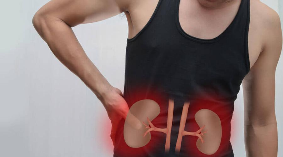 ¿Qué es la infartación renal? Conoce sus síntomas | El Imparcial de Oaxaca