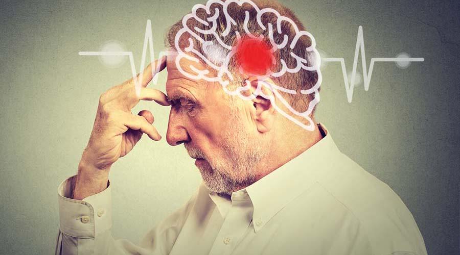 Aumenta a 25% el riesgo de accidente cerebrovascular | El Imparcial de Oaxaca