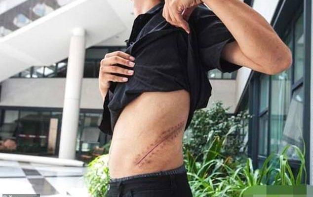 Joven vive postrado en una cama desde que vendió su riñón para comprarse un iPhone | El Imparcial de Oaxaca
