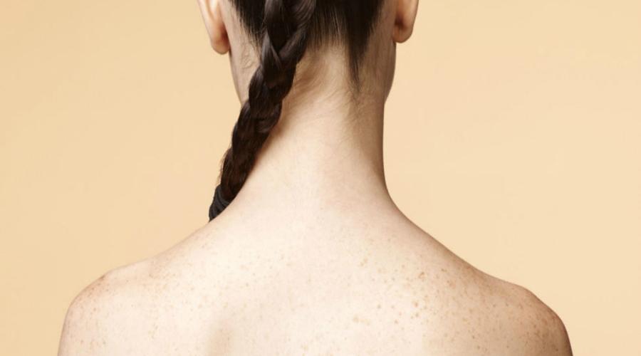 Tips para lucir una hermosa espalda sin acné | El Imparcial de Oaxaca
