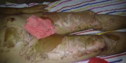 Controversia entre médicos de la Costa por paciente con quemaduras