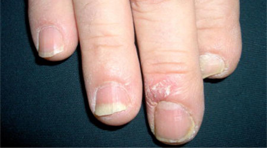 Hallopeau, un síndrome dermatológico sin cura | El Imparcial de Oaxaca