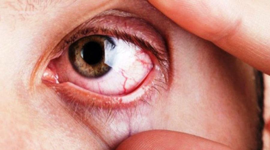 Los nuevos tratamientos para combatir el glaucoma | El Imparcial de Oaxaca