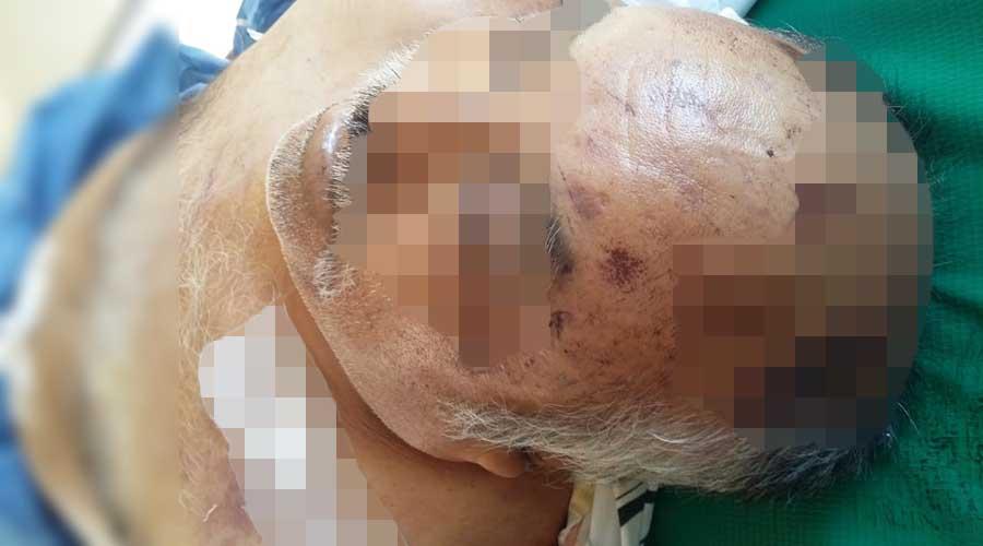 Muere hombre en IMSS de Miahuatlán | El Imparcial de Oaxaca