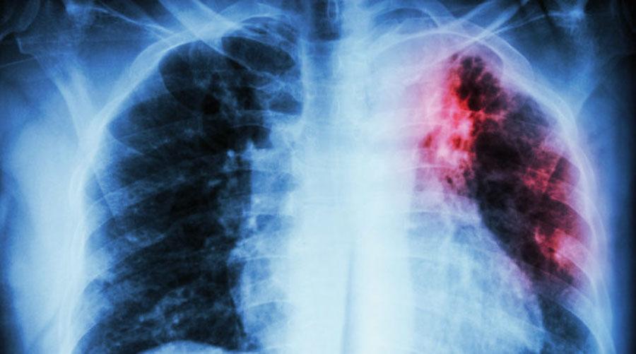 Repuntan casos de tuberculosis en Oaxaca   El Imparcial de Oaxaca