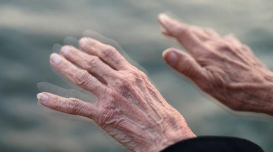 Estos cuatro síntomas podrían predecir el padecimiento de Parkinson | El Imparcial de Oaxaca