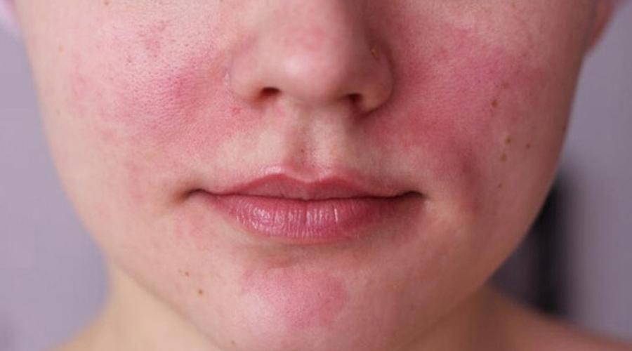 Rosácea, la enfermedad que se confunde con acné | El Imparcial de Oaxaca