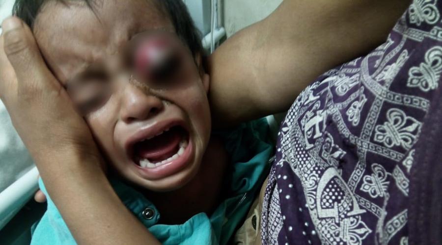 En la Mixteca niño de dos años sufre violencia física