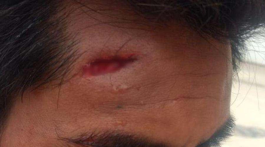 Violencia en Santa Rosa; responsabilizan a edil capitalino