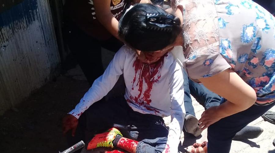 Menores se impactan contra poste en San Juan Chapultepec