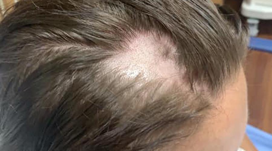 Se afeita la cabeza tras usar acondicionador que le tiró el pelo