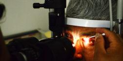Valorarán candidatos a cirugías visuales en Tuxtepec