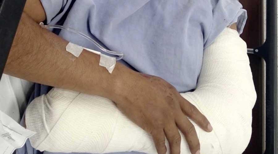 Provocan fracturas larga espera y costosa atención
