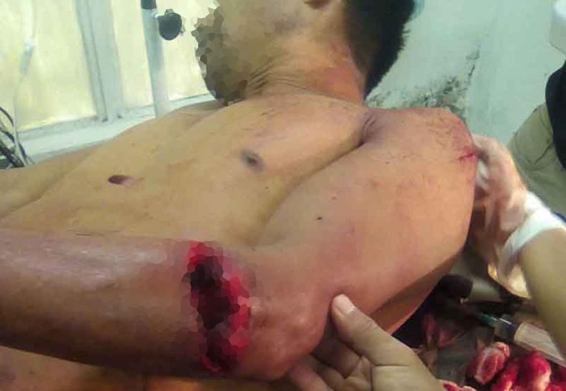 Machetean a una persona | El Imparcial de Oaxaca