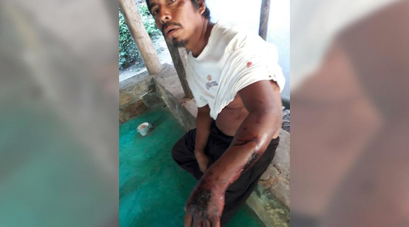 Se salva de  ser masticado  por un cocodrilo en Santa María Tonameca, | El Imparcial de Oaxaca