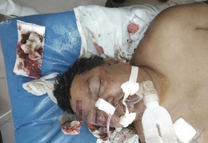 Atacan a machetazos  a empleado de la SSO | El Imparcial de Oaxaca