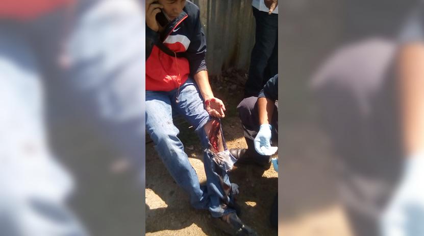 Derrapa motorista en Santa Cruz Xoxocotlán | El Imparcial de Oaxaca