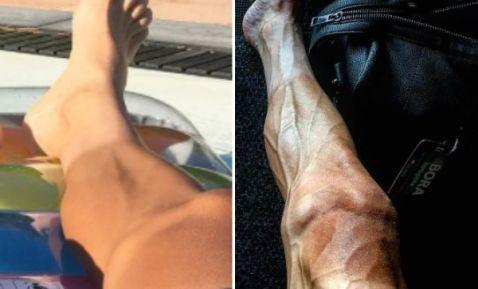 Así lucen las piernas de un ciclista después de participar en el Tour de Francia | El Imparcial de Oaxaca
